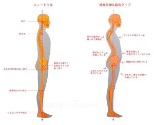 骨盤前傾タイプ